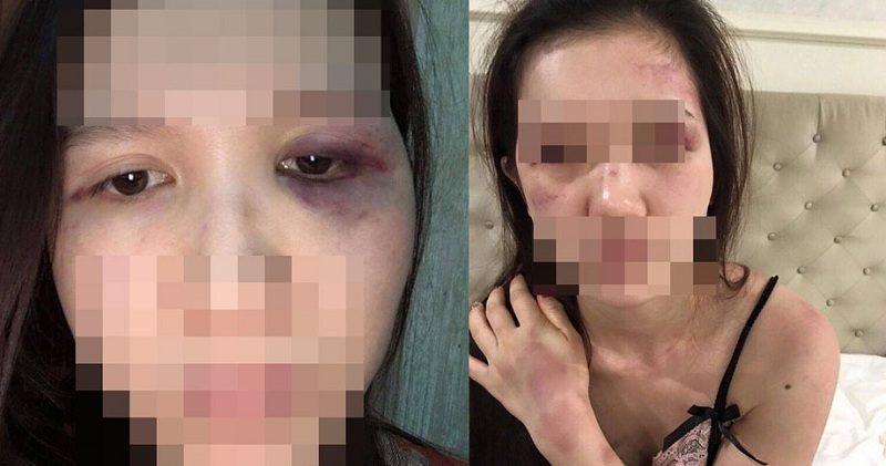 Thương xót cô gái trẻ, vừa sinh được 10 tháng đã liên tục phải gánh chịu những trận ĐÒN ROI của chồng, bị chồng đánh vỡ xương gò má PHỈA NẸP VÍT vào người